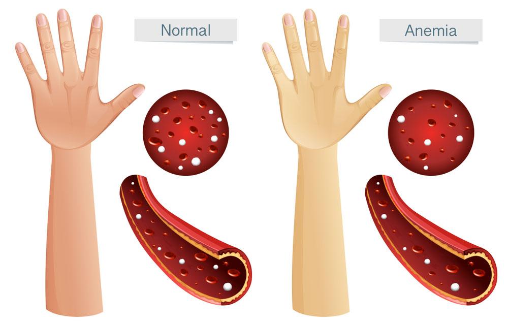 aspecto fisico y sintomas de la anemia